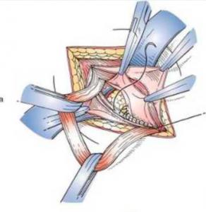 Shouldice repair