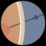 Icoon van een laparoscopische liesbreukoperatie