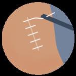 Liesbreukoperatie-zonder-matje